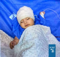 Syrian Baby in Jordan Sponsored-in Surgery