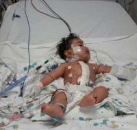 Baby Has Urgent Life-saving Surgery in Lebanon