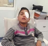 Syrian Boy Sponsored for Eye Surgery in Lebanon