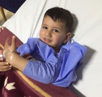 Syrian Baby Sponsored for Surgery in Jordan