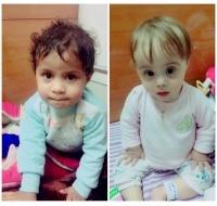 Two Iraqi Girls Sent to India for Lifesaving Surgery