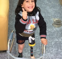 PCRF Sponsors Amputee For New Leg in Palestine