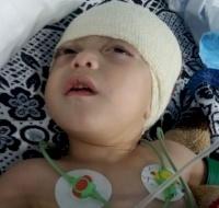 Syrian Baby Sponsored For Neurosurgery in Jordan