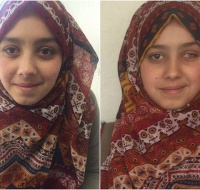 Palestinian Girl Receives Artificial Eye In the Bay Area