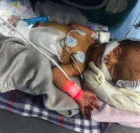 Syrian Baby Sponsored for Surgery in Jordan