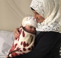 Syrian Baby Has Surgery in Jordan
