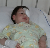Syrian Refugee Has Surgery to Remove Tumor