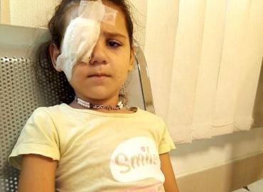 Syrian Girl Has Eye Surgery in Lebanon