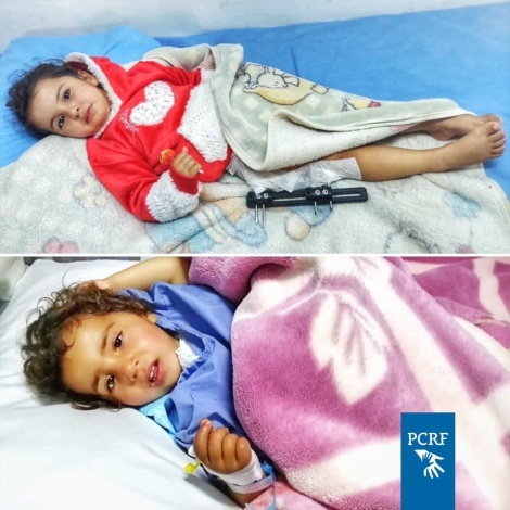 Two Syrian Refugee Girls Sponsored for Surgery