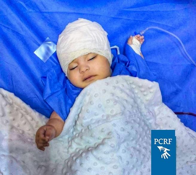Syrian Baby in Jordan Sponsored-in Surgery