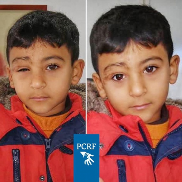 Syrian war victim treated in Lebanon