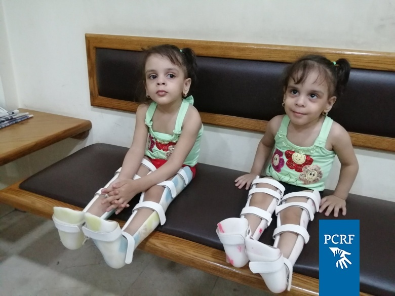 What Are Ways to Help a Child Adjust to a Prosthesis?